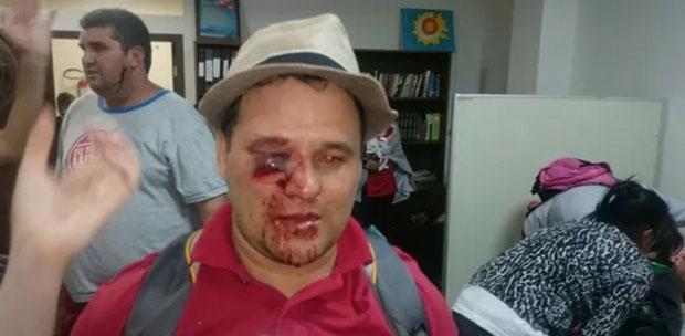 professor ferido no olho curitiba