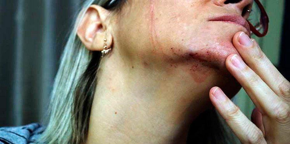 jornalista agredida em recife por bolsonaristas